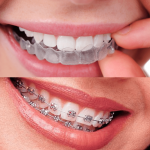 invisalign-vs-brackets-dentista-alcobendas