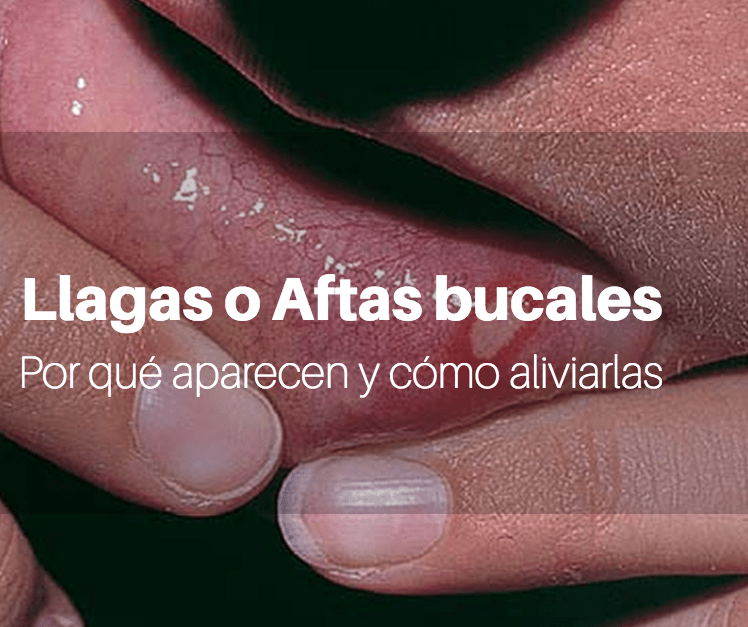 llaga, afta bucal, clinica dental, alcobendas