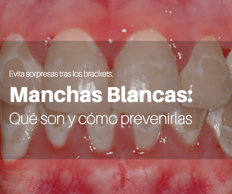 machas-blancas-brackets-clinica-dental-alcobendas