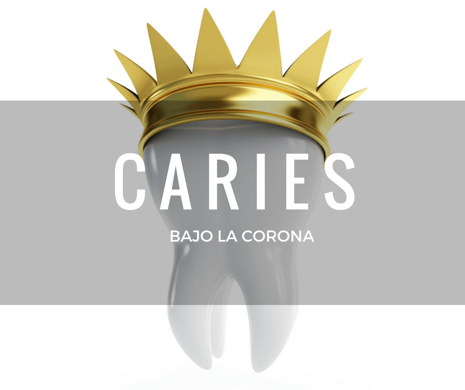 caries-bajo-corona-dental