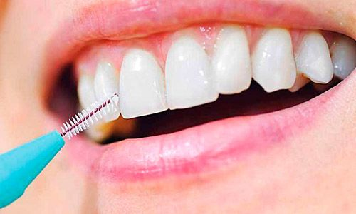HIgiene dental para pacientes con diabetes