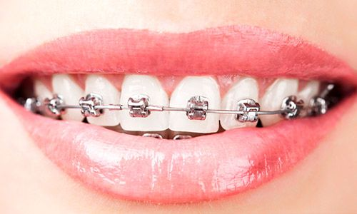 Brackets autoligables en Madrid