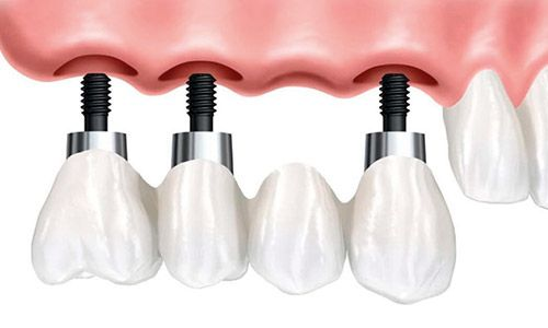 Puente dental sobre implante