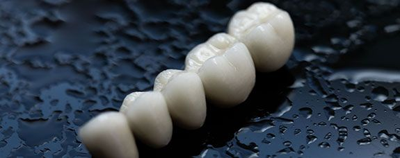 Implantes dentales en Madrid norte