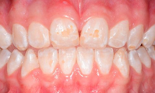Causas de la hipoplasia dental